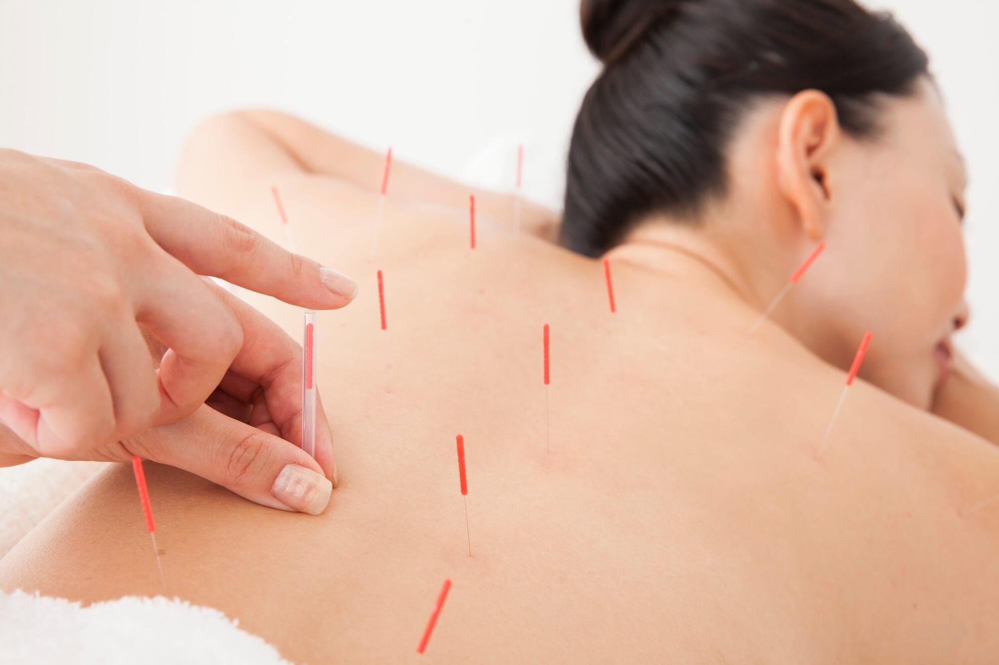 鍼治療の様子